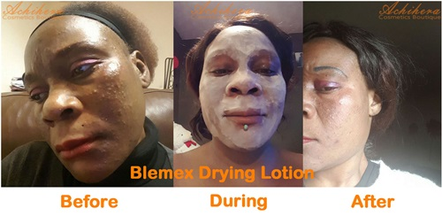 Blemex Drying Lotion Reviews