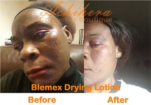 Blemex Drying Lotion Testimonial