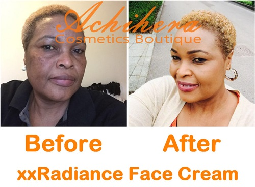 BeforeAfter-xxRadiance-review
