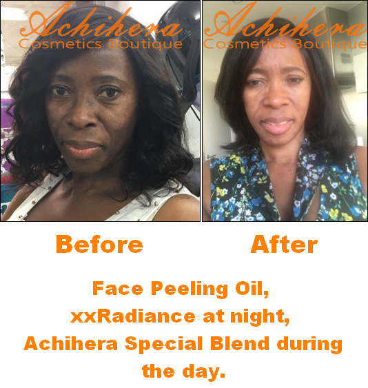 BeforeDuringAfter-Face-PeelingOil-Review